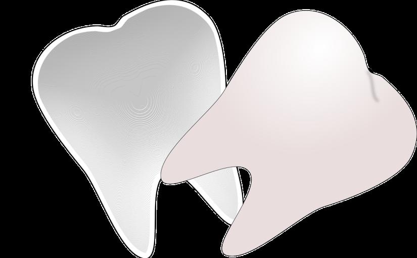 Prześliczne nienaganne zęby oraz olśniewający prześliczny uśmiech to powód do płenego uśmiechu.